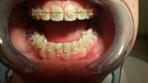 Ortodonzia fissa ed intercettiva studio dentistico a Catania Palmeri