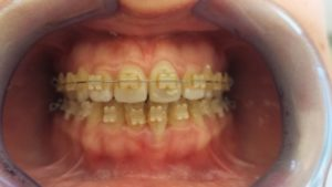 Ortodonzia fissa ed intercettiva a Catania Studio Dentistico Palmeri