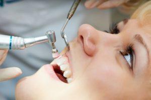 pulizia denti studio palmeri dentisti catania