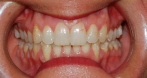 Ortodonzia invisibile a Catania Studio Dentistico Palmeri