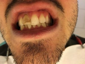 Sbiancamento professionale a Catania Studio Dentistico Palmeri