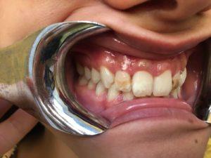 Odontoiatria protesica estetica a Catania Studio Dentistico Palmeri
