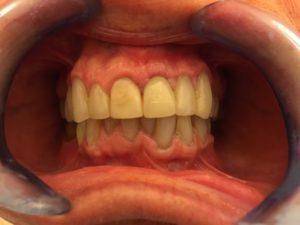 Ortodonzia protesica restaurativa studio dentistico a Catania Palmeri