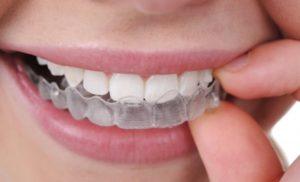 Un sorriso a prova di Hollywood con l'ortodonzia invisibile: Studio Dentistico Palmeri