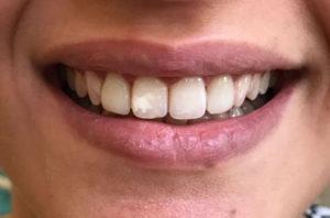 Ortodonzia protesica estetica a Catania Studio Dentistico Palmeri