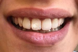 Ortodonzia protesi estetica a Catania Studio Dentistico Palmeri