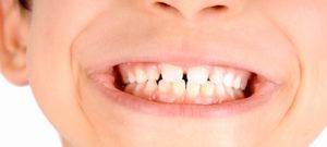 Cosa fare quando tuo figlio perde precocemente un dente: Studio Dentistico Palmeri