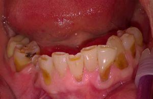 Odontoiatria protesica restaurativa a Catania Studio Dentistico Palmeri