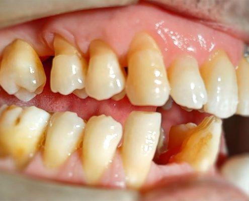 Endodonzia e conservativa a Catania Studio Dentistico Palmeri