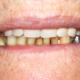 Protesi fissa inferiore metallo ceramica su denti naturali a Catania Studio Palmeri