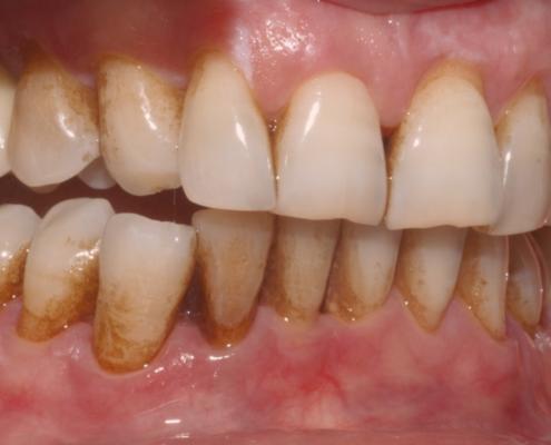 Igiene dentale professionale con metodo Air-Flow a Catania Studio Dentistico Palmeri
