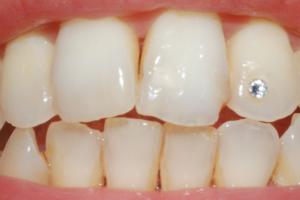Ricostruzione dente a Catania Studio Dentistico Palmeri