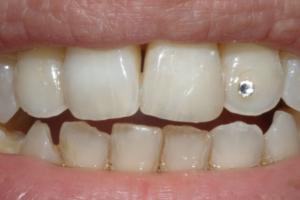 Ricostruzione in composito a Catania Studio Dentistico Palmeri