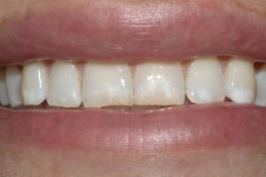 Discromie dello smalto macchie dei denti
