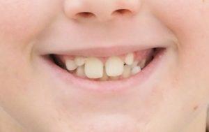 denti molto grandi