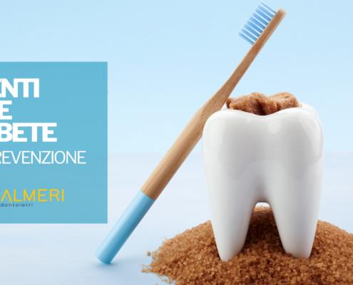 denti e diabete studio palmeri dentisti catania