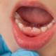 bambini con denti storti che hanno bisogno di apparecchio ai denti
