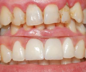 Un caso clinico di faccetta dentale per migliorare l'estetica del sorriso